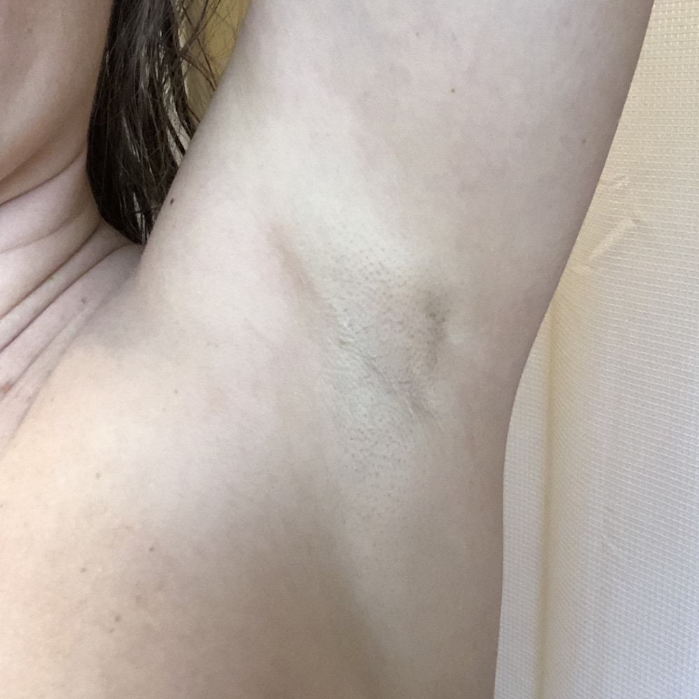 Laser Hair Removal After - St. Louis