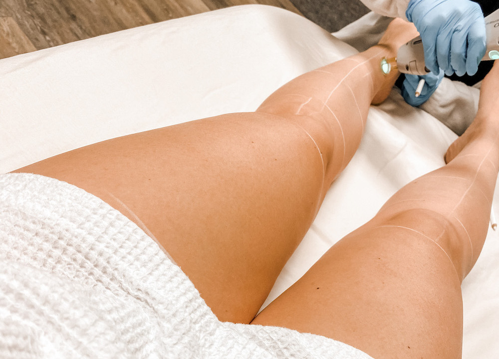 Laser Hair Removal - Does it hurt?